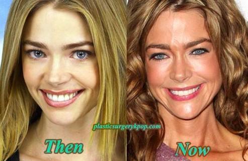 Denise Richard Before & After