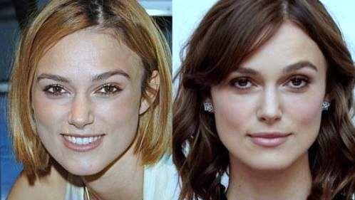Keira Knightleuyy Before and After Picture from Nose Job