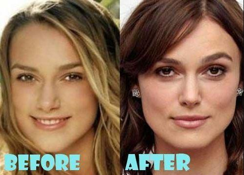 Keira Knightleuyy Before and After Picture from plastic surgery