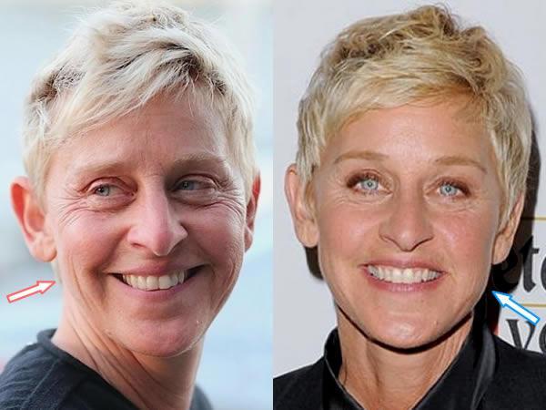 Ellen DeGeneres Before and After
