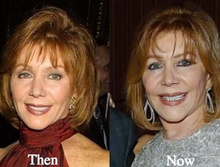 Joy Philbin Before and After